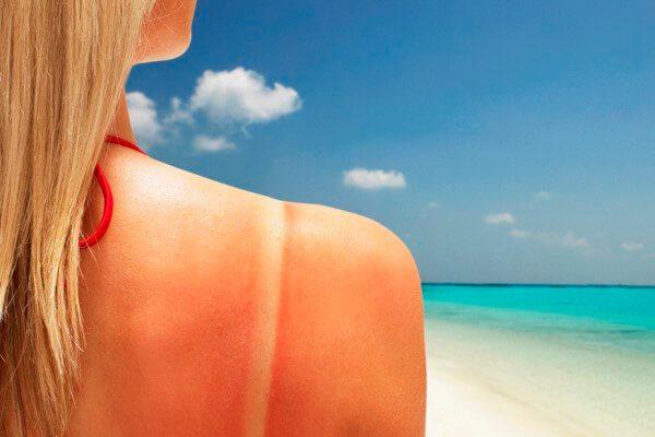 Remedios caseros para las quemaduras del sol