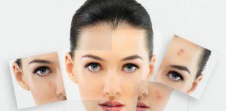 como evitar los granos en la cara