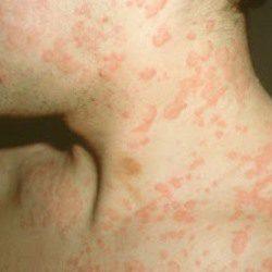sintomas alergia alimenticia