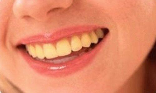 por qué se manchan los dientes