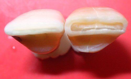 esmalte de las piezas dentales
