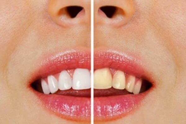 ¿Cómo blanquear mis dientes en casa?
