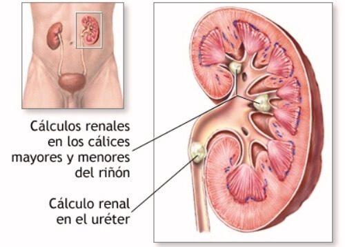 piedras riñón ácido úrico nivel alto