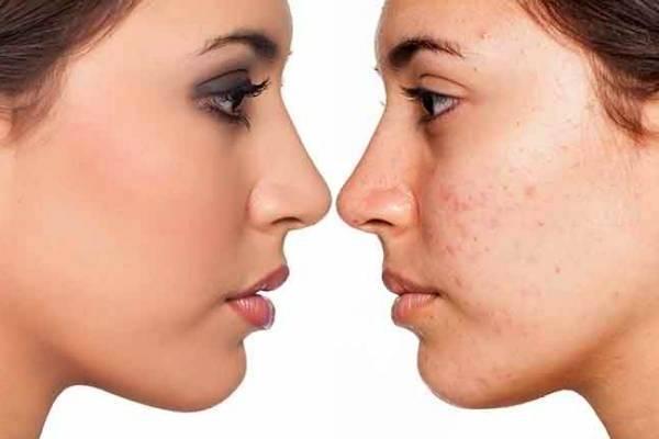 trucos para quitar las manchas de la cara