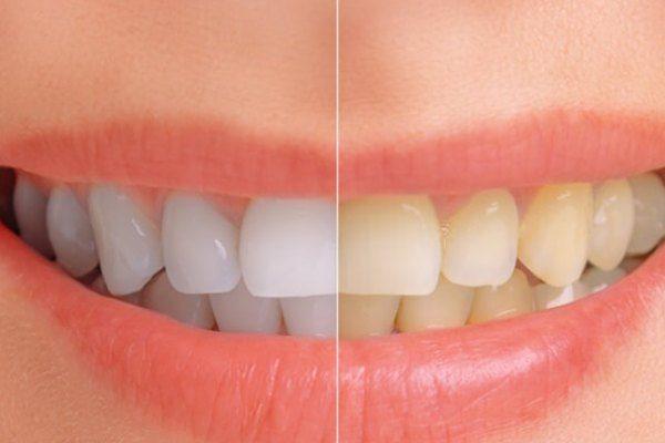 blanquear los dientes remedios caseros naturales
