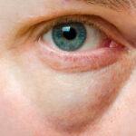 Cómo eliminar las ojeras con remedios naturales