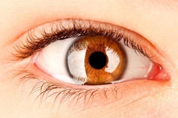 Detectar la anemia mediante fotografías del párpado inferior